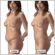 Abdominoplastia-RESULTADOS-DE-LA-ABDOMINOPLASTIA-COMPLETA