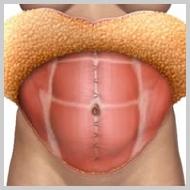 Abdominoplastia6-TENSIÓN-DE-LOS-MÚSCULOS-ABDOMINALES