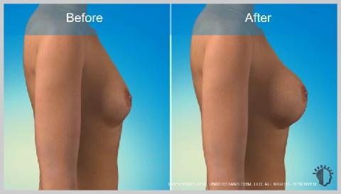 Aumento-de-Senos-Implantes-de-Silicona-RIESGOS-Y-RESULTADOS