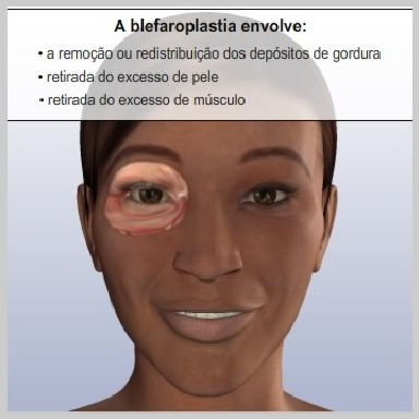 Blefaroplastia-Pálpebras-Superiores-COMO-FUNCIONA-A-BLEFAROPLASTIA