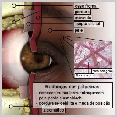 Blefaroplastia-Pálpebras-Superiores-O-QUE-PROVOCA-MUDANÇAS-NAS-PÁLPEBRAS