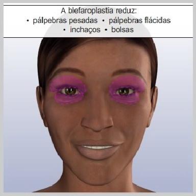 Blefaroplastia-palpebras-inferiores-externas-O-QUE-PROVOCA-MUDANÇAS-NAS-PÁLPEBRAS