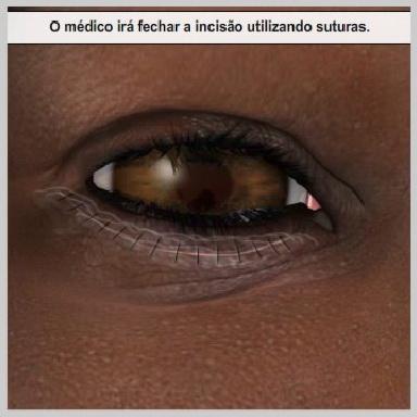 Blefaroplastia-palpebras-inferiores-externas-RECUPERAÇÃO-DA-BLEFAROPLASTIA-NA-PORÇÃO-EXTERNA-DAS-PÁLPEBRAS-INFERIORES