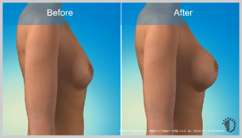Breast-Augmentation-Silicone-RISKS-AND-RESULTS
