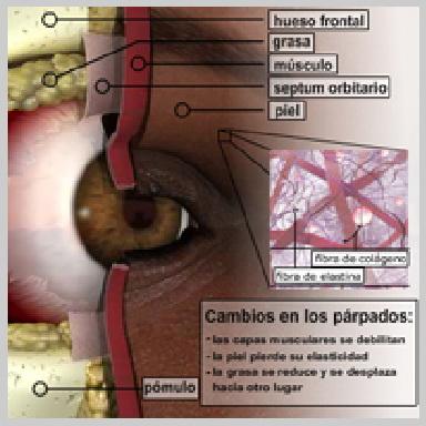 Cirugia-de-Parpados-Inferior-via-Interior-CAMBIOS-EN-LOS-PÁRPADOS