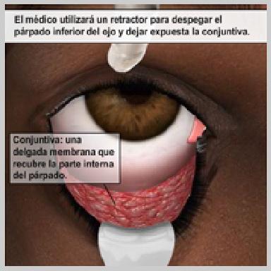 Cirugia-de-Parpados-Inferior-via-Interior-INCISIONES