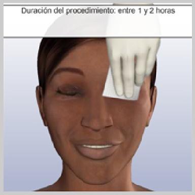Cirugia-de-Parpados-Inferior-via-Interior-PREPARACIÓN-PARA-LA-CIRUGÍA