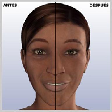Cirugia-de-Parpados-Inferior-via-Interior-RESULTADOS