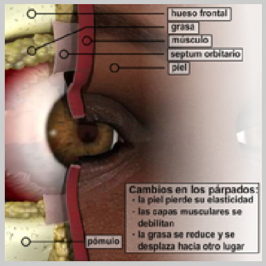 Cirugia-de-Parpados-Superior-CAMBIOS-EN-LOS-PÁRPADOS
