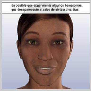 Cirugia-de-Parpados-Superior-RECUPERACIÓN