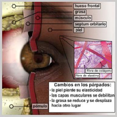 Cirurgía-Párpados-Inferior-Vía-Exterior-CAMBIOS-EN-LOS-PÁRPADOS