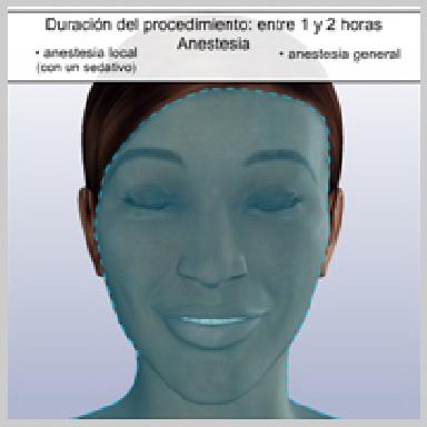 Cirurgía-Párpados-Inferior-Vía-Exterior-PREPARACIÓN-PARA-LA-CIRUGÍA