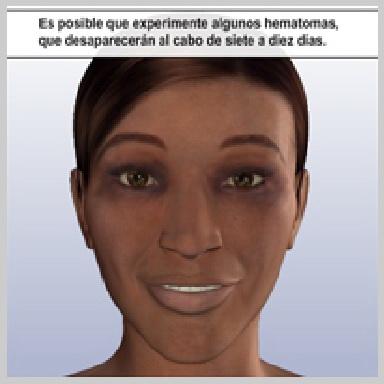 Cirurgía-Párpados-Inferior-Vía-Exterior-RECUPERACIÓN