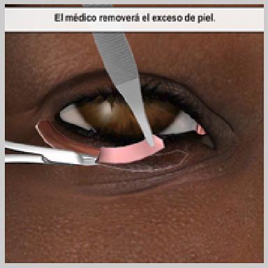 Cirurgía-Párpados-Inferior-Vía-Exterior-REMOCIÓN-DEL-EXCESO-DE-PIEL