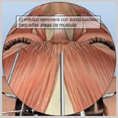 Estiramiento-de-Frente-Endoscóipico-ALTERACIÓN-DE-LA-ACTIVIDAD-MUSCULAR