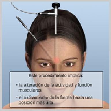 Estiramiento-de-Frente-Endoscóipico-ESTIRAMIENTO-ENDOSCÓPICO-DE-FRENTE