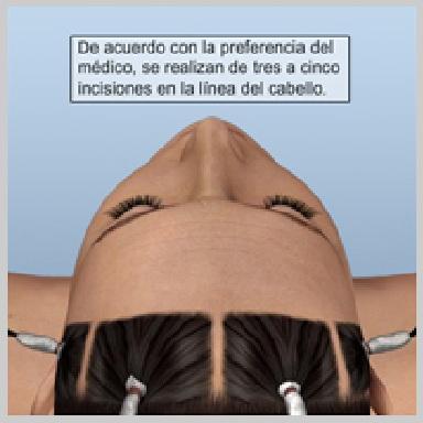 Estiramiento-de-Frente-Endoscóipico-INCISIONES-ENDOSCÓPICAS