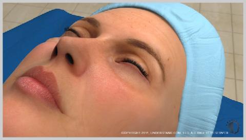 Eyelid-Surgery-Lower-OUTSIDE-LOWER-EYELID-PROCEDURE