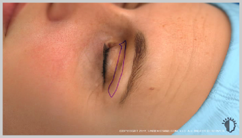 Eyelid-Surgery-Upper-PREPARATION