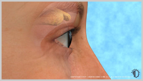 Eyelid-Surgery-Upper-WHAT-CAUSES-EYELIDS-TO-CHANGE