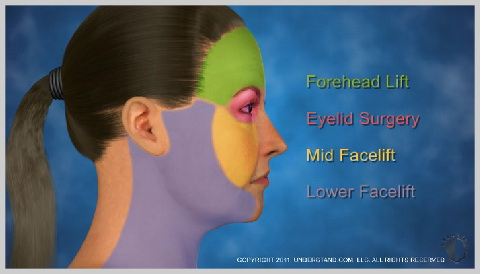 Facelift-Mid-HOW-A-MID-FACELIFT-WORKS