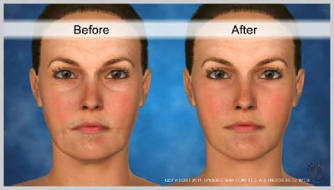 Facelift-Mid-RECOVERY-AND-RESULTS