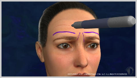 Forehead-Lift-PREPARATION