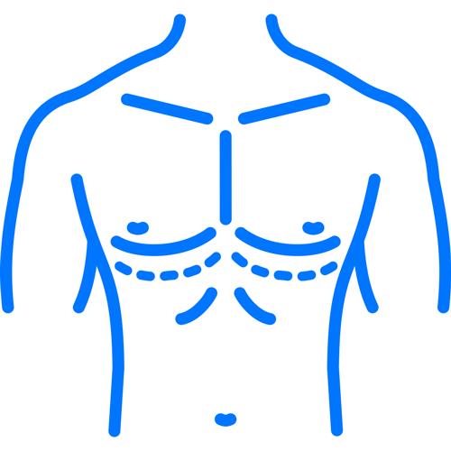 Gynecomastia_Icon