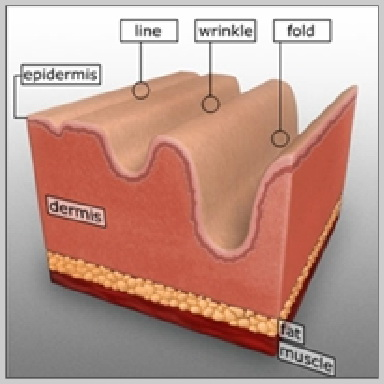 Dentro del tejido conectivo de la dermis, el colágeno y las fibras de elastina forman una red, otorgándole a la piel estructura, soporte y elasticidad. Además, las células grasas y otras moléculas, como el ácido hialurónico, contribuyen a la creación de volumen por debajo de la piel del rostro. Con el transcurso del tiempo, esta red de colágeno y elastina se rompe, y las moléculas de ácido hialurónico y las células grasas que crean volumen se reducen. El hecho de que estas moléculas se rompan y se reduzcan al mismo tiempo provoca la aparición de arrugas y otros cambios en la piel del rostro. Cuando se utilizan como tratamientos únicos o junto con otros procedimientos, los rellenos inyectables pueden reducir o eliminar arrugas y cicatrices, crear labios más rellenos y tratar la lipoatrofia, o la pérdida de grasa debajo de la piel.