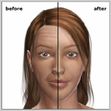 Hyaluronic-Acid-HYALURONIC-ACID-INJECTION-RESULTS