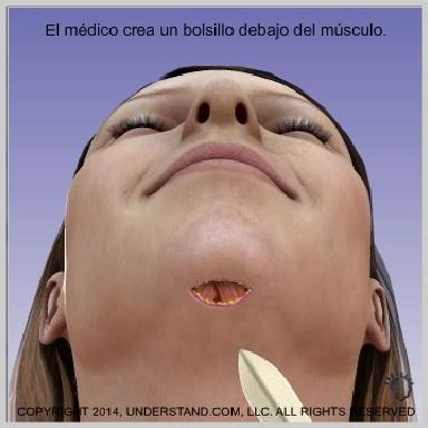 Implantes-de-menton-INCISIÓN-Y-FORMACIÓN-DEL-BOLSILLO-PARA-EL-IMPLANTE-DE-MENTÓN