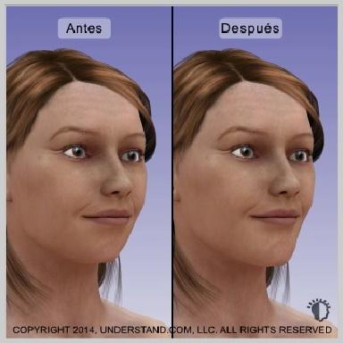 Implantes-de-menton-RESULTADOS-DEL-IMPLANTE-DE-MENTÓN