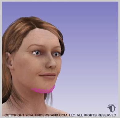 Implantes-de-menton