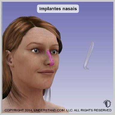 Implantes-nasais-IMPLANTES-NASAIS