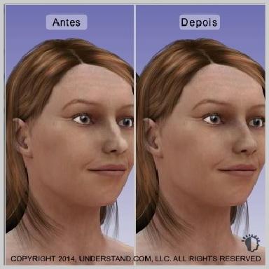Implantes-nasais-RESULTADOS