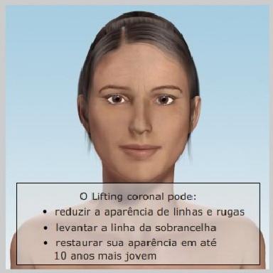 Lifiting-Testa-Coronal-COMO-FUNCIONA-O-LIFTING-CORONAL