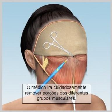 Lifiting-Testa-Coronal-FECHAMENTO-DA-INCISÃO