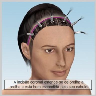 Lifiting-Testa-Coronal-LEVANTAMENTO-DO-TECIDO
