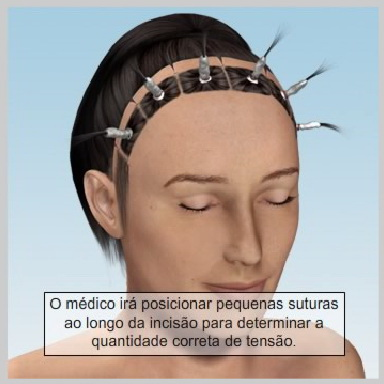 Lifiting-Testa-Coronal-RECUPERAÇÃO-DO-LIFTING-CORONAL