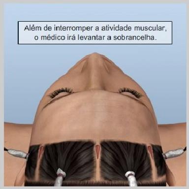 Lifiting-Testa-Endoscópio-LEVANTANDO-A-SOBRANCELHA