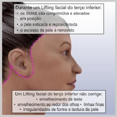 Lifting-Face-Terço-Inferior-COMO-FUNCIONA-O-LIFTING-FACIAL-DO-TERÇO-INFERIOR?