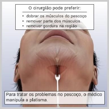 Lifting-Face-Terço-Inferior-LIFTING-DO-PESCOÇO