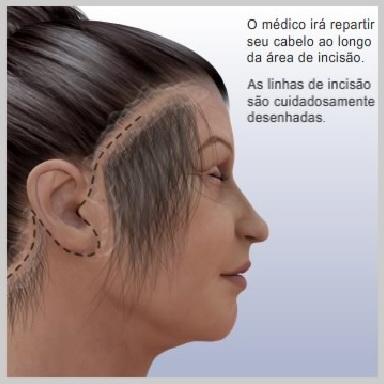 Lifting-Face-Terço-Inferior-PREPARO-CIRÚRGICO