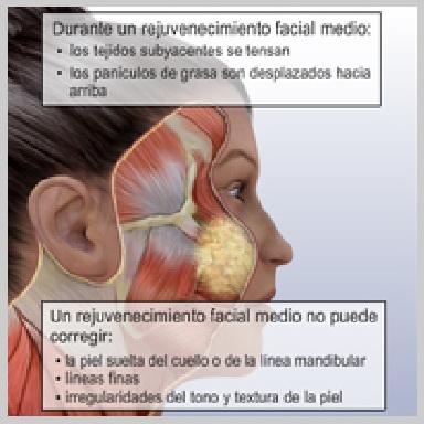 Lifting-Facial-Part-Media-REJUVENECIMIENTO-FACIAL-MEDIO
