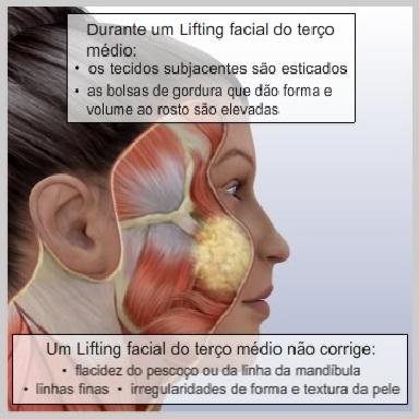 Lifting-face-terço-medio-COMO-FUNCIONA-O-LIFTING-FACIAL-DO-TERÇO-MÉDIO