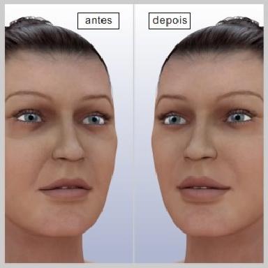 Lifting-face-terço-medio-RESULTADOS-DO-LIFTING-FACIAL-DO-TERÇO-MÉDIO