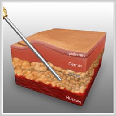 Liposccíon-abdomen-LIPOSUCCIÓN