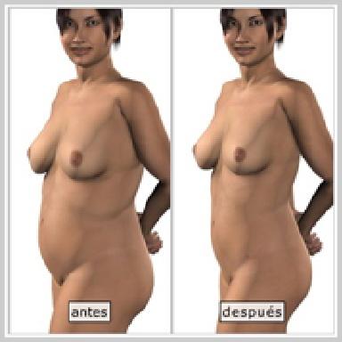 Liposccíon-abdomen-RESULTADOS-DE-LA-LIPOSUCCIÓN