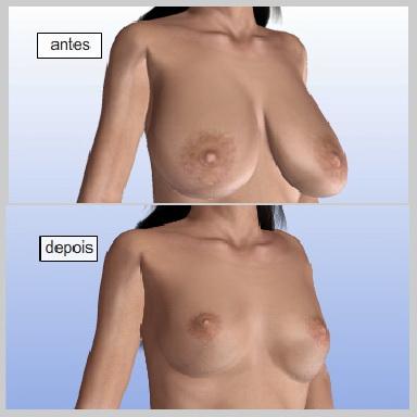 Mamoplastia-Redutora-RECUPERAÇÃO-E-RESULTADOS