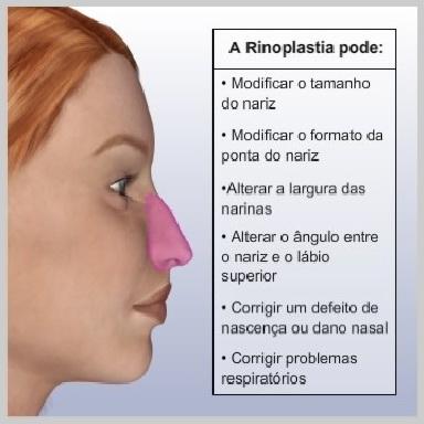 Rinopastia-Fechada-ANATOMIA-NASAL